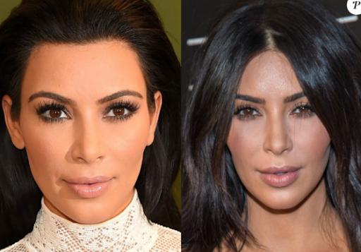 Kim Kardashian bichectomie