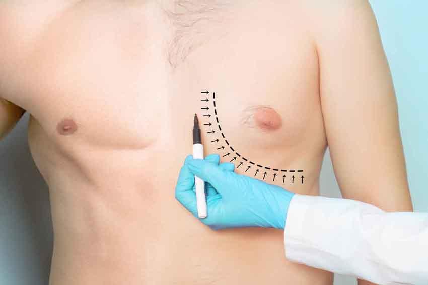 gynecomastie-homme